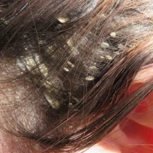 Dandruff prevention haircare